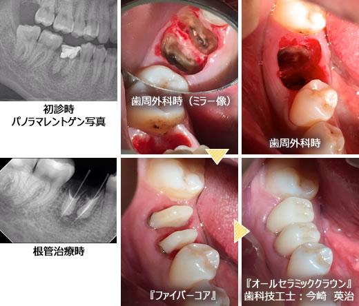 他 痛い 抜歯 後 歯 が 親知らず の