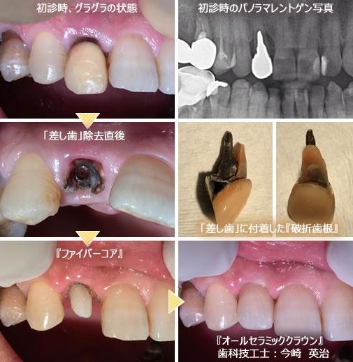 歯 痛く ない グラグラ を 抜く 方法 の