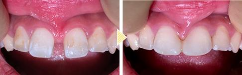 乳歯 すき っ 歯
