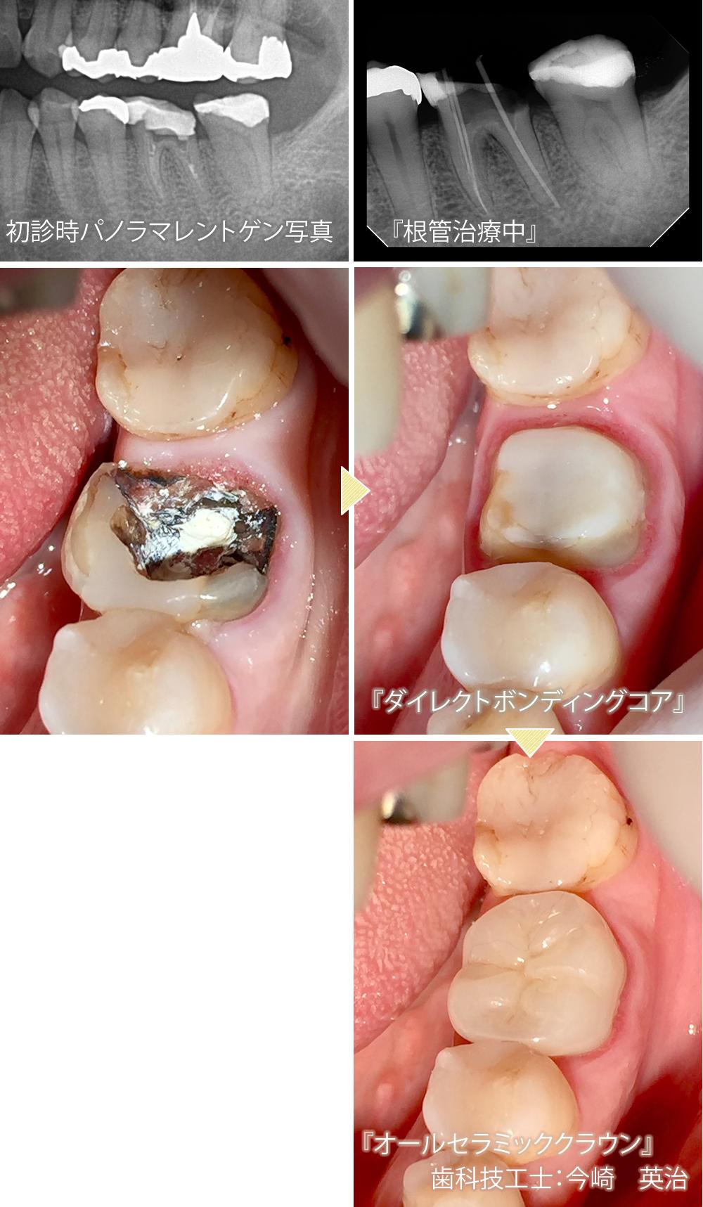 虫歯 放置 奥歯