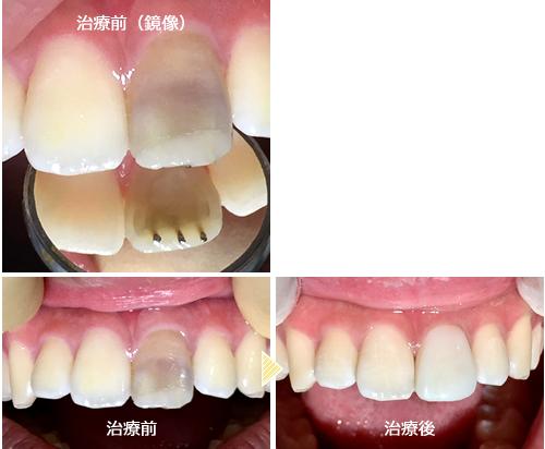歯を白くする方法 中学生